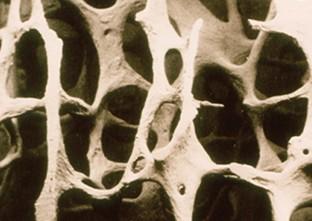 Giornata Mondiale dell'osteoporosi. Prevenire le fratture di femore negli anziani